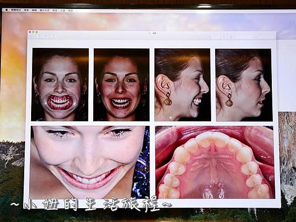 中壢當代牙醫 DSD 牙套 貼片P1190403.jpg