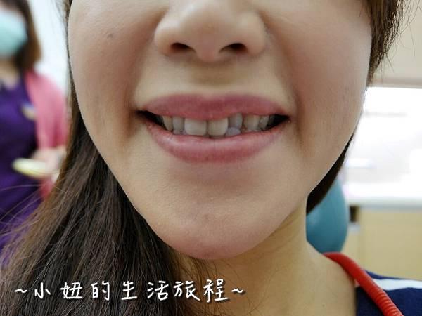 中壢當代牙醫 DSD 牙套 貼片P1210804.jpg
