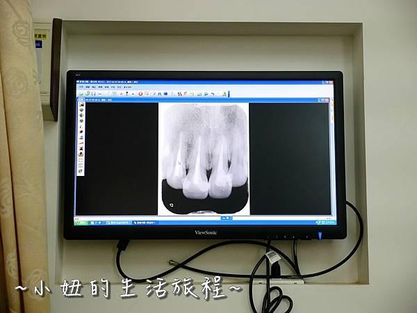 中壢當代牙醫 DSD 牙套 貼片P1210806.jpg