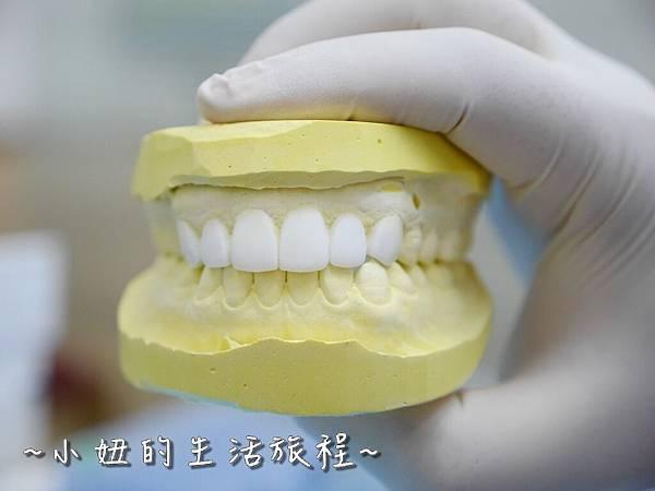 中壢當代牙醫 DSD 牙套 貼片P1210807.jpg