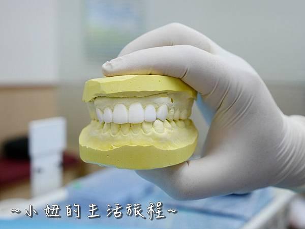 中壢當代牙醫 DSD 牙套 貼片P1210808.jpg