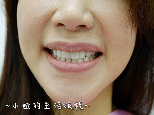 中壢當代牙醫 DSD 牙套 貼片P1210828.jpg