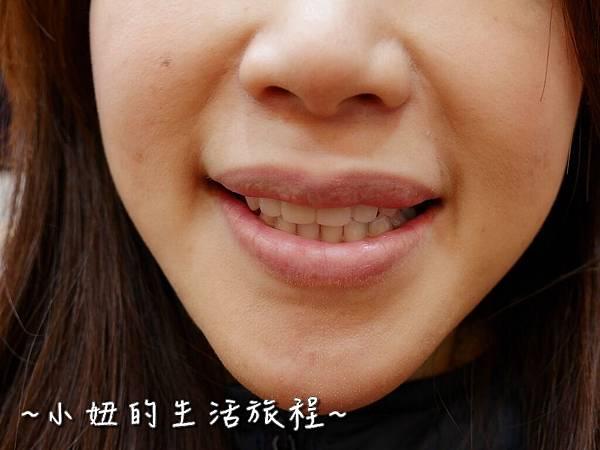 中壢當代牙醫 DSD 牙套 貼片P1210868.jpg