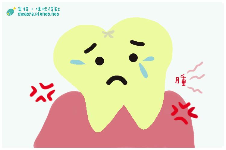 [懷孕生活雜記]20140912|孕婦牙齦發炎腫脹怎麼辦!?痛得好無奈.png