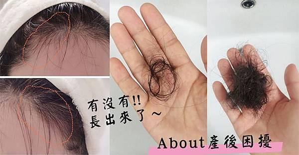 產後掉髮改善吃什麼.jpg
