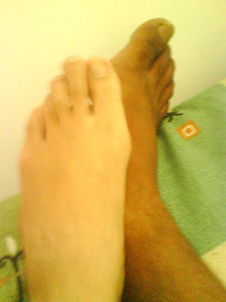我們的腳ㄚ