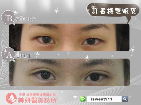 雙眼皮術前(大)