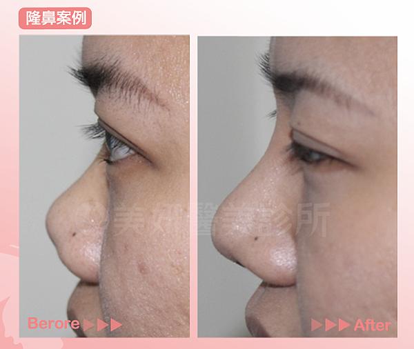 鼻re02