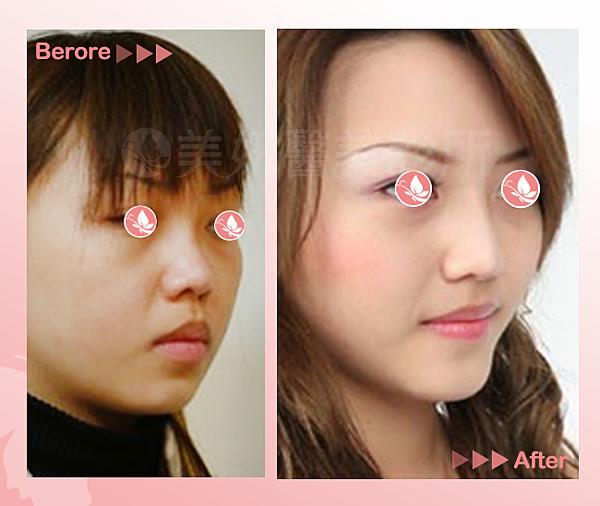 鼻re04