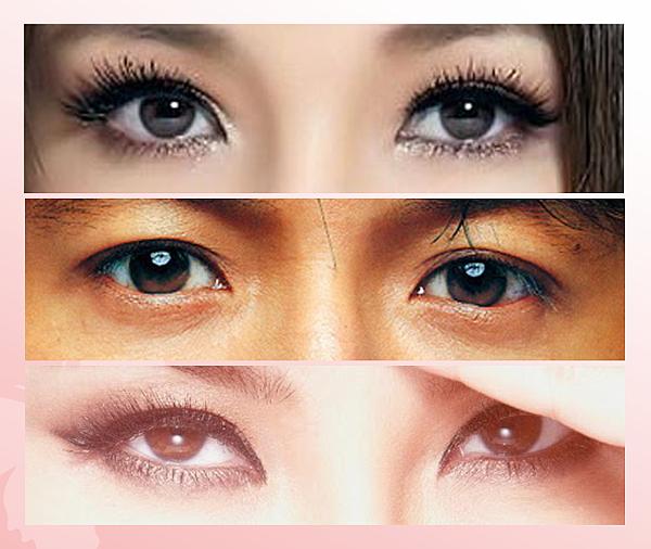 雙眼皮(1)