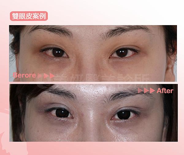 雙眼皮03(1)