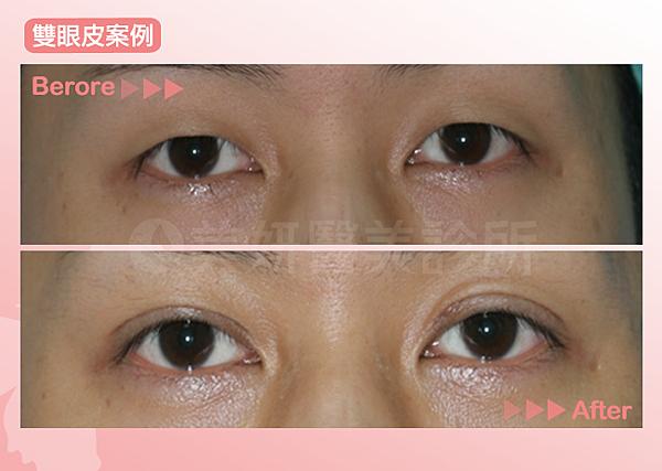 雙眼皮05(1)