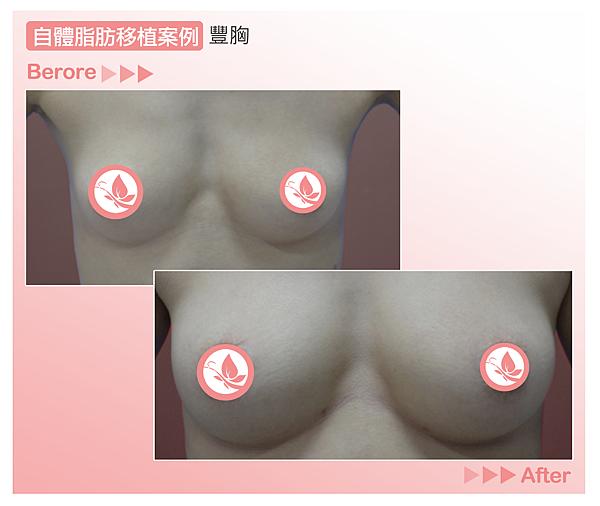 高雄美妍醫美 自體脂肪案例 豐頰豐胸