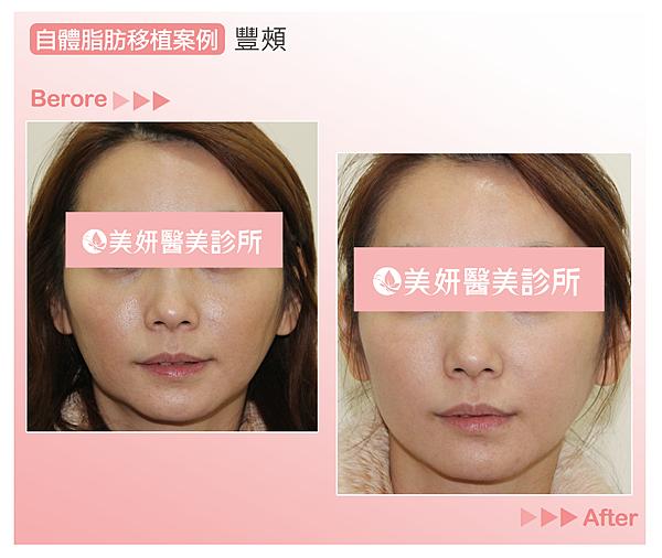 高雄美妍醫美|自體脂肪案例|豐頰豐胸