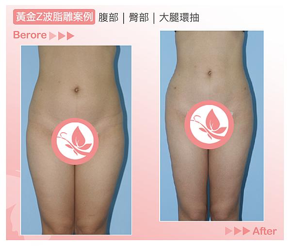 高雄美妍醫美|黃金Z波脂雕|超音波抽脂案例