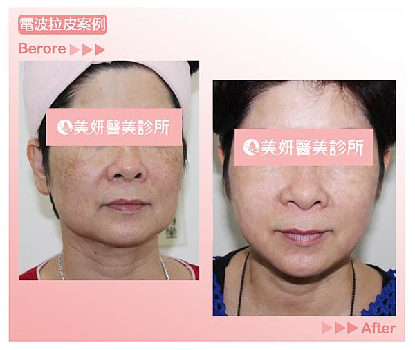 高雄美妍醫美|CPT電波拉皮院內案例