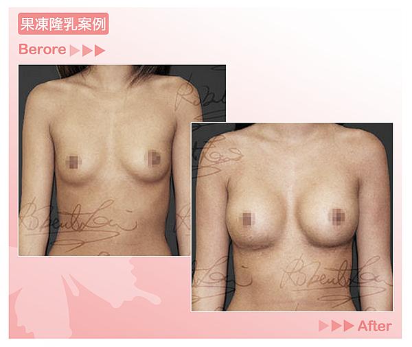 高雄美妍醫美|隆乳院內案例
