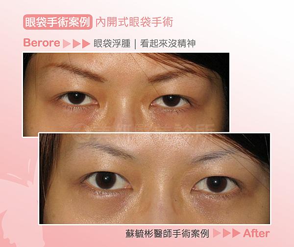 眼袋手術01(1)
