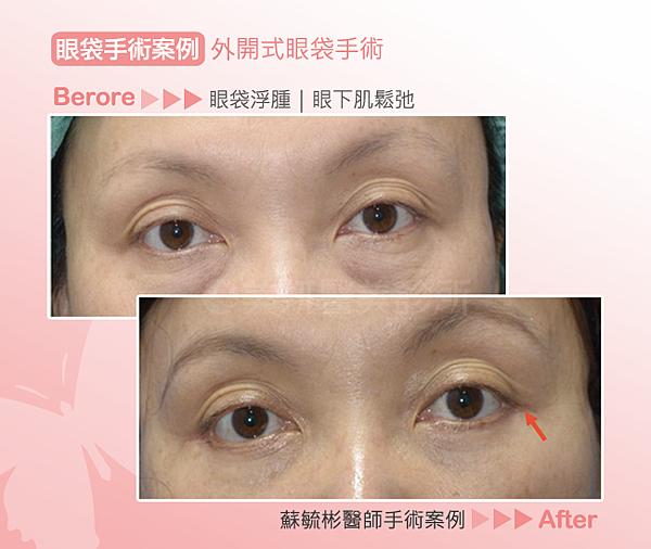眼袋手術02-外開式