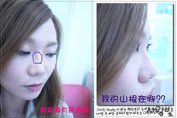 Fiyon玻尿酸隆鼻part1-4