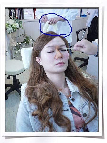 Fiyon玻尿酸隆鼻part1-5