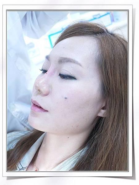 Fiyon玻尿酸隆鼻part1-8