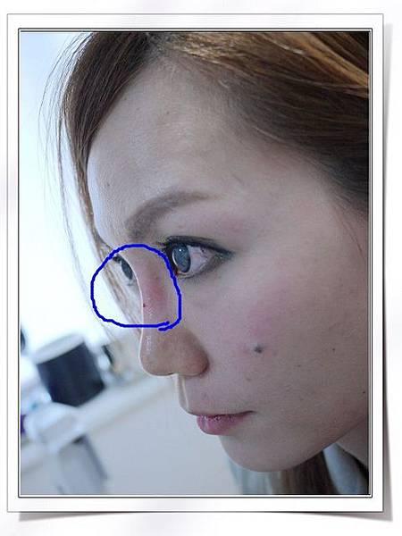 Fiyon玻尿酸隆鼻part1-9