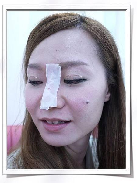 Fiyon玻尿酸隆鼻part1-10