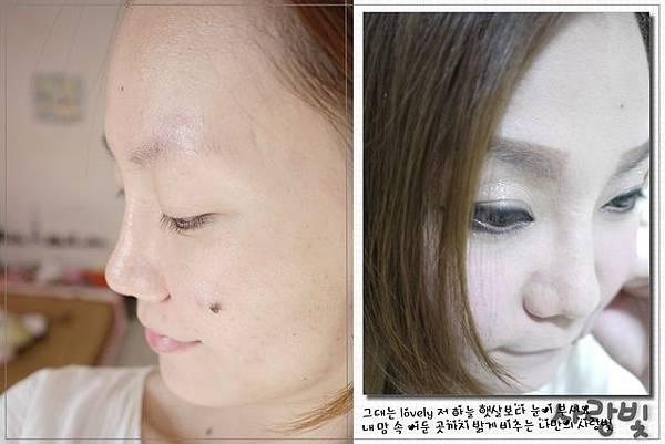 Fiyon玻尿酸隆鼻part1-17