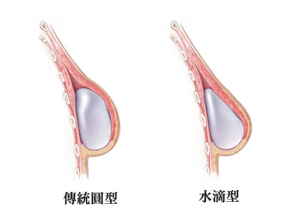 美妍醫美水滴隆乳-傳統圓形vs水滴型示意圖.jpg