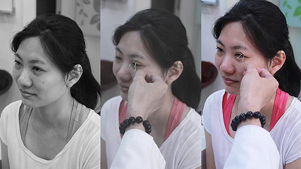 2小瑀術前評估--高雄醫美診所整形外科賴慶鴻雙眼皮.png
