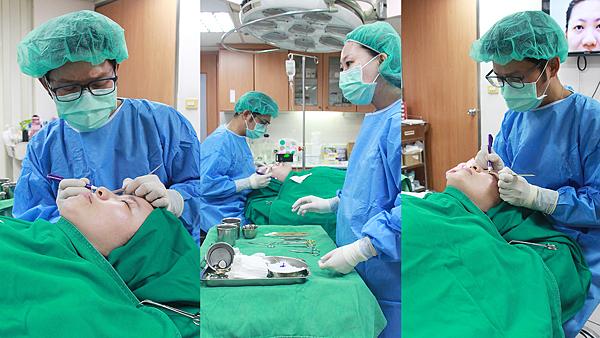 11瑩消毒畫線-高雄醫美診所整形外科賴慶鴻雙眼皮.png