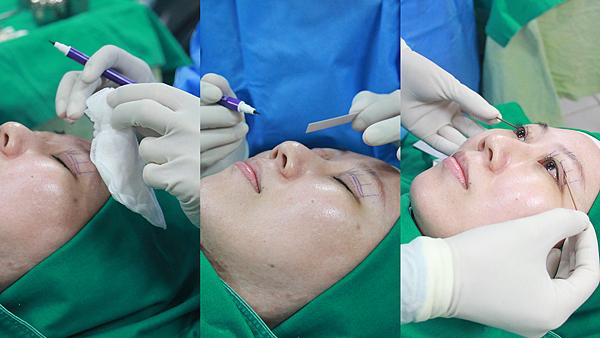 12敏術前劃線評估-高雄醫美診所整形外科賴慶鴻雙眼皮.png