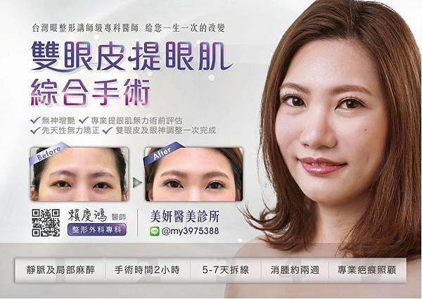 14瑀術後--高雄醫美診所整形外科賴慶鴻雙眼皮.jpg