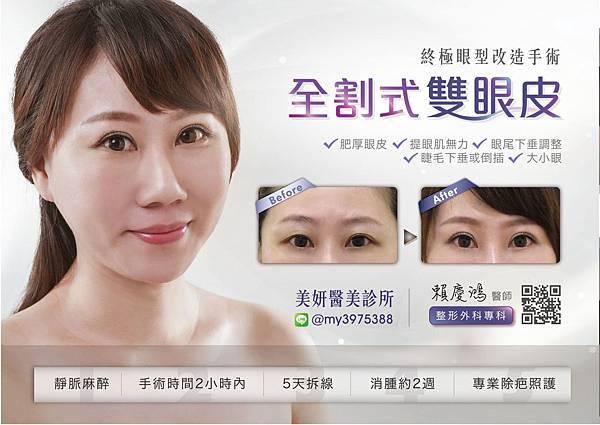 16小敏術後--高雄醫美診所整形外科賴慶鴻雙眼皮.jpg