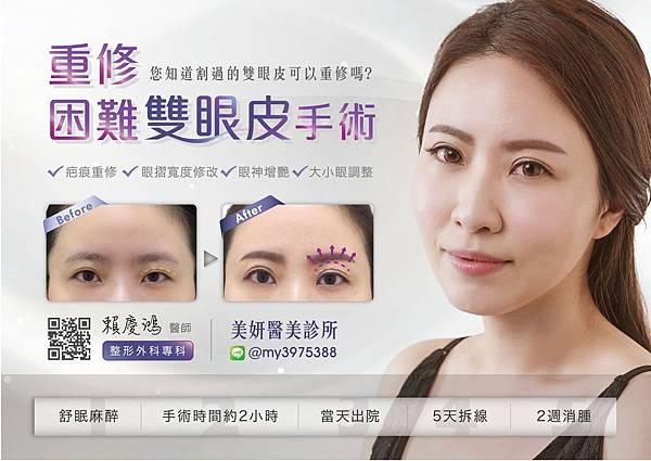 15瑩術後--高雄醫美診所整形外科賴慶鴻雙眼皮.jpg
