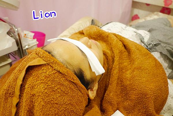 讓粉刺浮出來-Lion Fun部落客杏仁酸清痘粉刺保濕換膚高雄美妍醫美診所.png