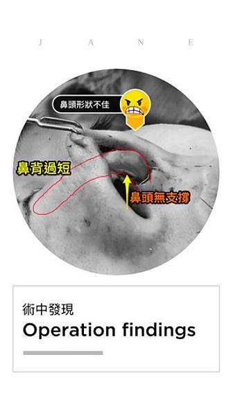 05美麗的錯誤-賴慶鴻醫師隆鼻文分享高雄美妍醫美診所整形外科.png