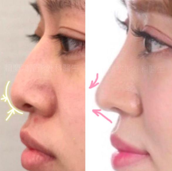 09美麗的錯誤-賴慶鴻醫師隆鼻文分享高雄美妍醫美診所整形外科.png