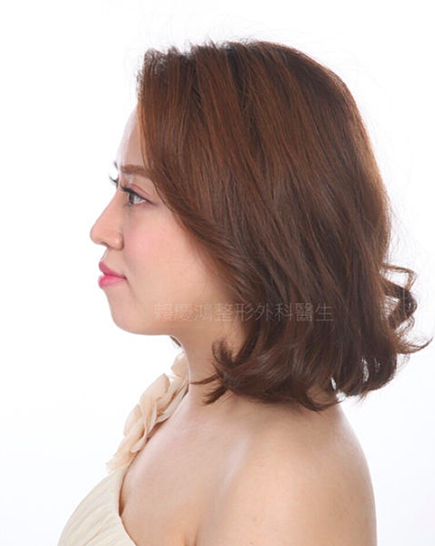 06美麗的錯誤-賴慶鴻醫師隆鼻文分享高雄美妍醫美診所整形外科.png