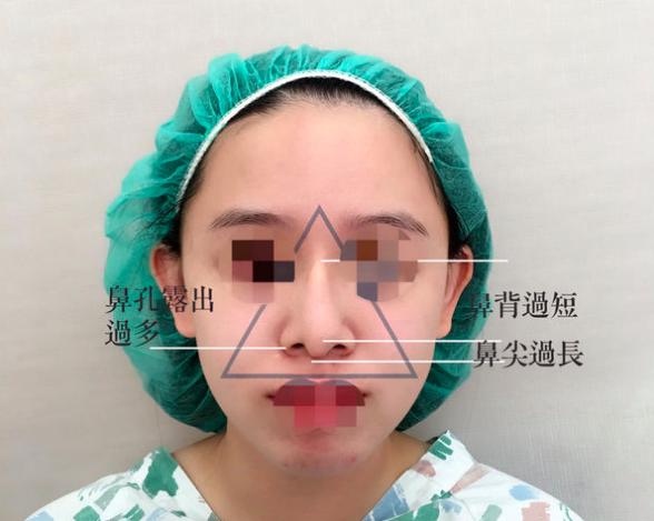 04美麗的錯誤-賴慶鴻醫師隆鼻文分享高雄美妍醫美診所整形外科.png