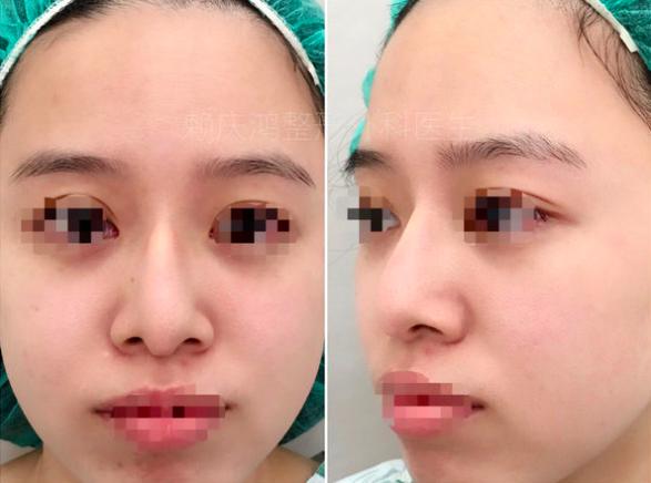 03美麗的錯誤-賴慶鴻醫師隆鼻文分享高雄美妍醫美診所整形外科.png
