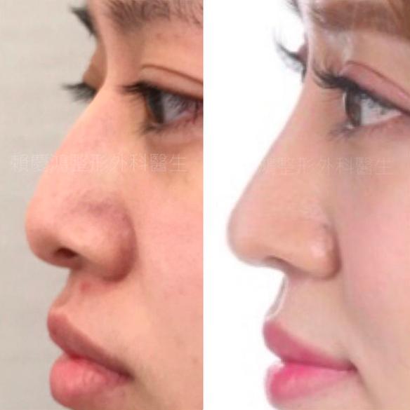 08美麗的錯誤-賴慶鴻醫師隆鼻文分享高雄美妍醫美診所整形外科.png