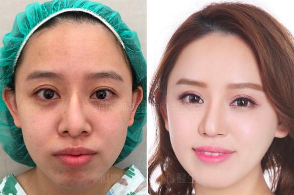 10美麗的錯誤-賴慶鴻醫師隆鼻文分享高雄美妍醫美診所整形外科.png