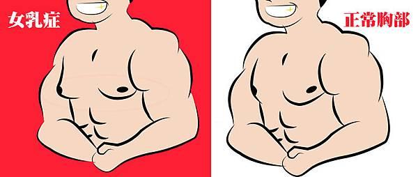 04-我要胸肌不要乳房之男性女乳症高雄整形外科蘇毓彬美妍醫美診所.jpg