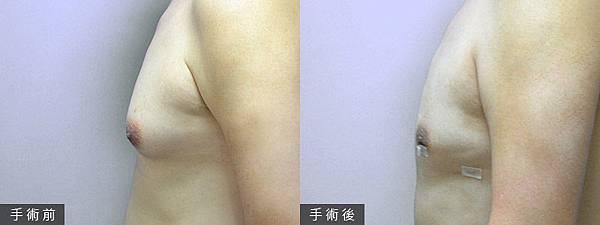 09-我要胸肌不要乳房之男性女乳症高雄整形外科蘇毓彬美妍醫美診所.jpg