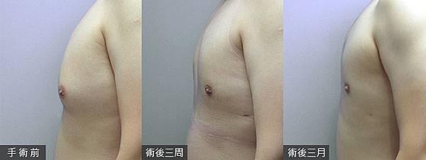 08-我要胸肌不要乳房之男性女乳症高雄整形外科蘇毓彬美妍醫美診所.jpg