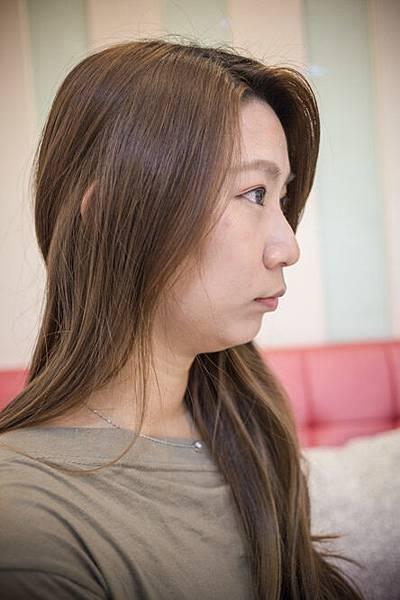 07-黑糖妹玻尿酸下巴短小內縮高雄美妍醫美診所整形外科.jpg