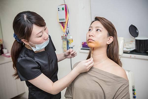 13-黑糖妹玻尿酸下巴短小內縮高雄美妍醫美診所整形外科.jpg