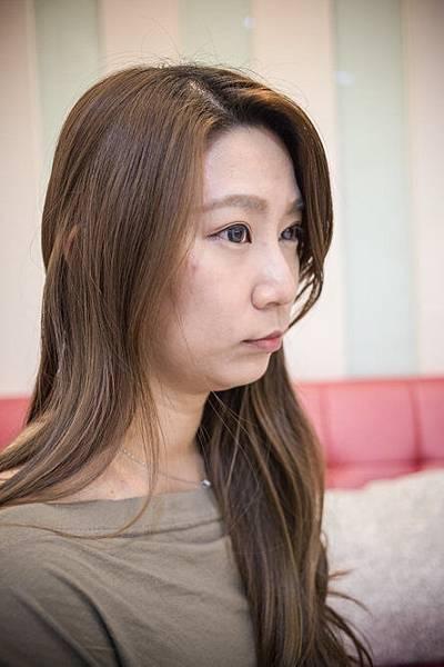 08-黑糖妹玻尿酸下巴短小內縮高雄美妍醫美診所整形外科.jpg